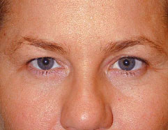 Endoscopic Browlift - After