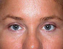 Endoscopic Browlift - Before